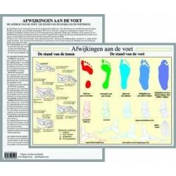 Poster Afwijkingen van de voet  21 x 30 cm geplastificeerd