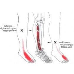 Workshop Triggerpoints armen en benen